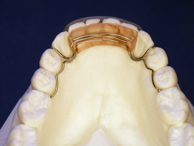Orthodontic Finishing And Retention In Foothills Ranch Ca