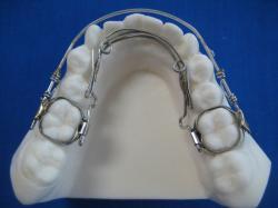Lingual labial corrector  (Mandibular)