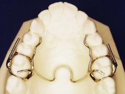 basic maxillary crozat
