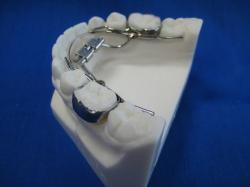 Mandibular expander (williams)