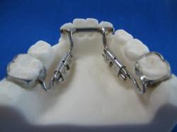 sagittal lower fixed