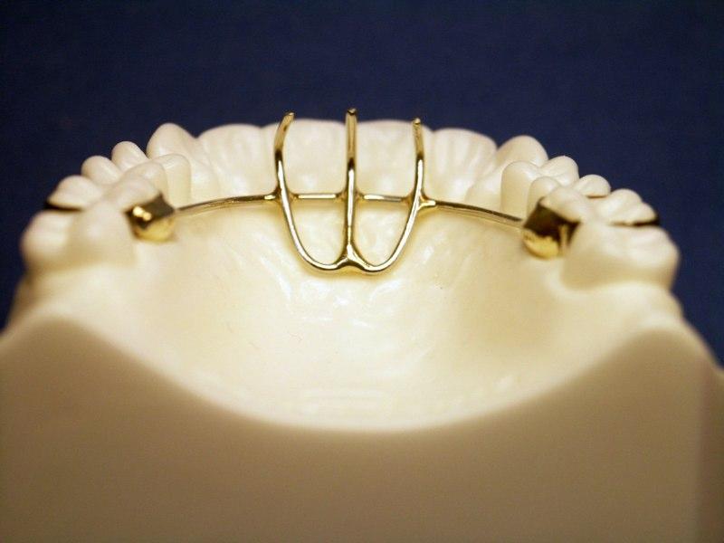 Orthodontic Habit Appliances in Foothills Ranch, CA ...