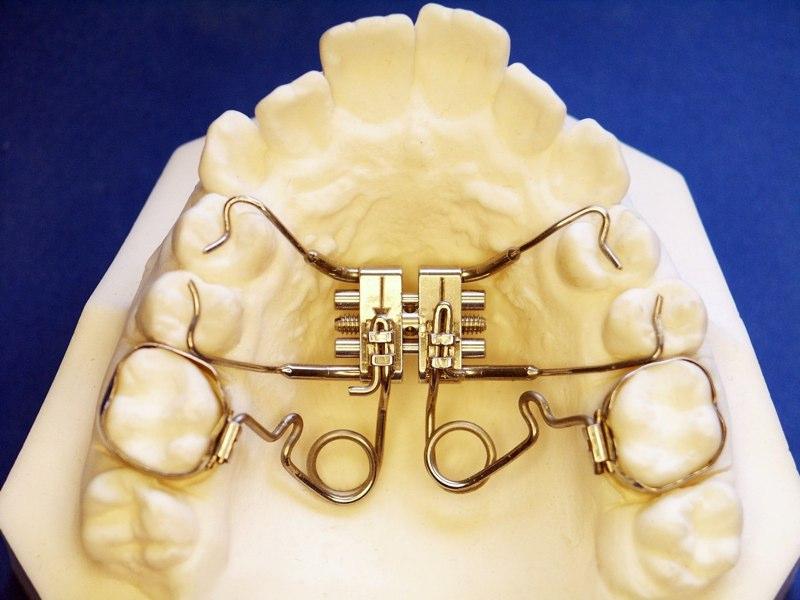 Orthodontic Molar Distalization Roque Orthodontic