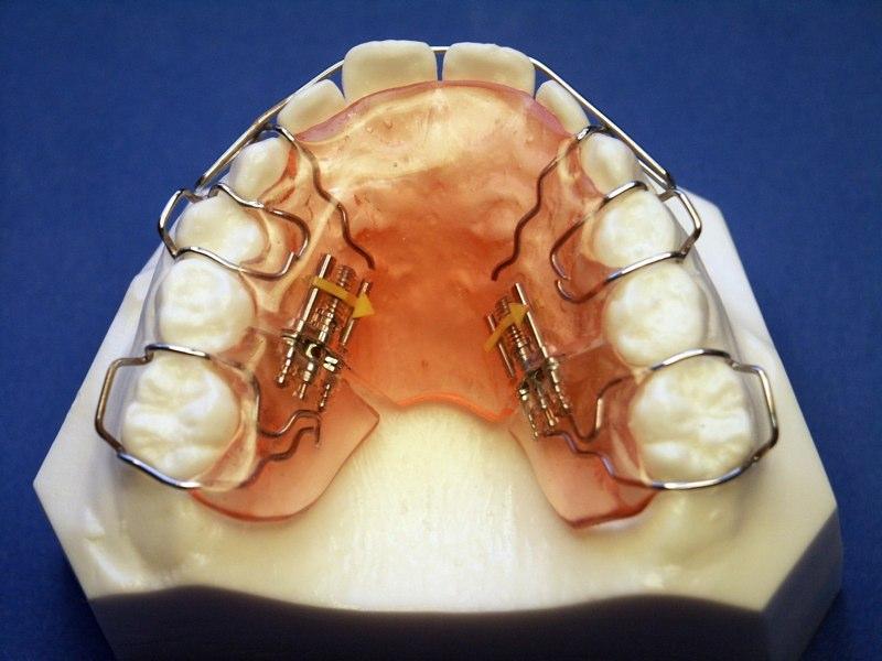 Orthodontic Molar Distalization | Roque Orthodontic ...