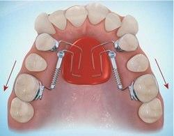 Orthodontic Molar Distalization Roque Orthodontic
